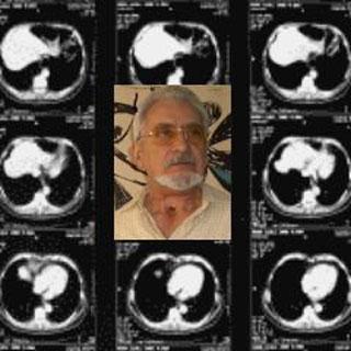 Oler mejora el habla esofágica